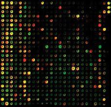 Figur 6. DNA micro array: Metode som basalforskere bruker på prostata cancer vev i jakten på bedre prognostiske markører. Intenstiteten og fargen av hver spot gir informasjon om mengden av et spesifikt gen i vevet som testes.