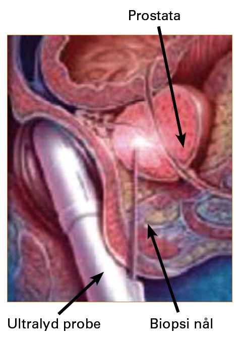 Figur 7. Transrectal ultralyd veiledet prostata biopsi er en prosedyre som øker betydelig ved urologiske poliklinikker fordi stadige flere menn tar PSA prøve.